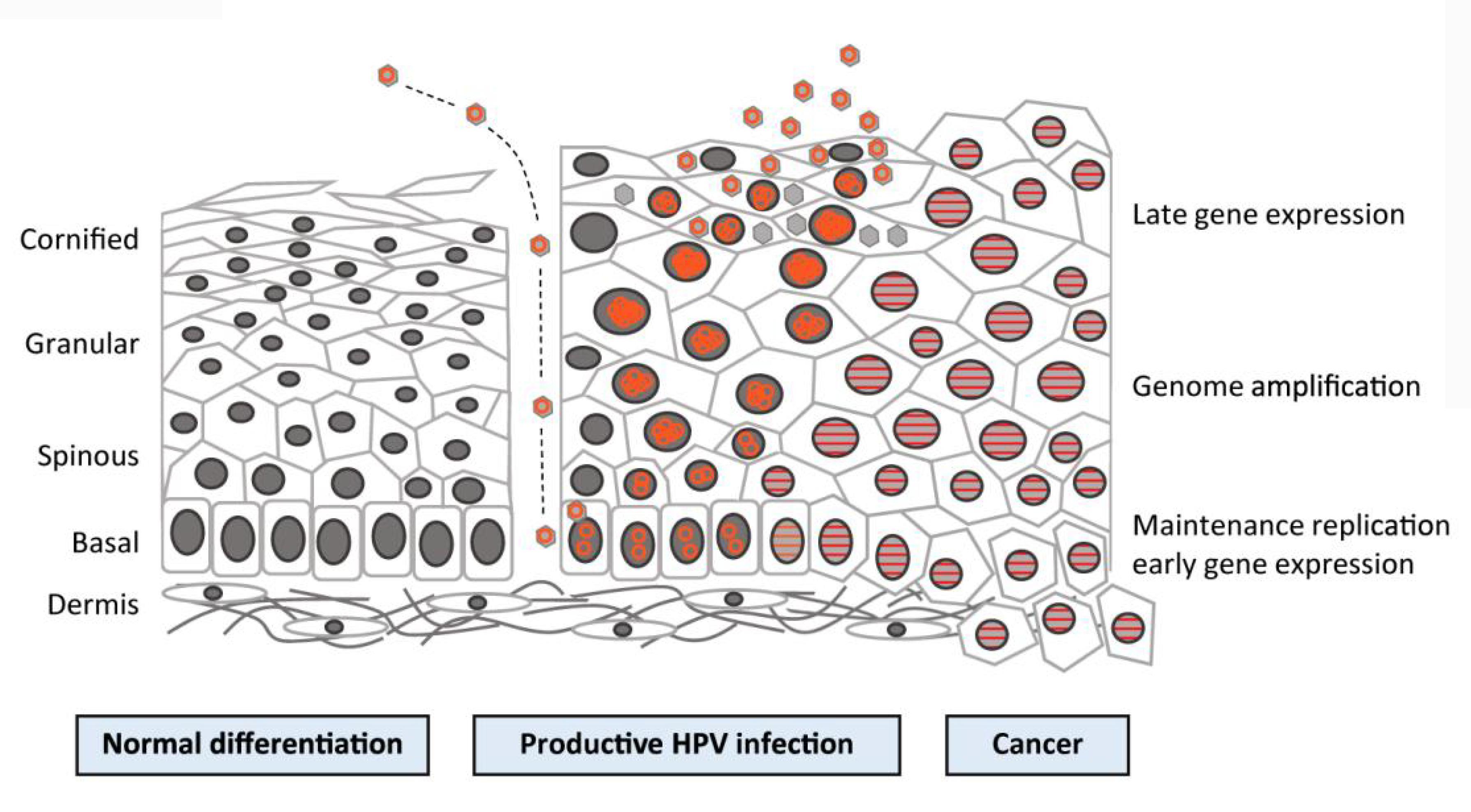 cancer laringe edad aceto di mele per hpv