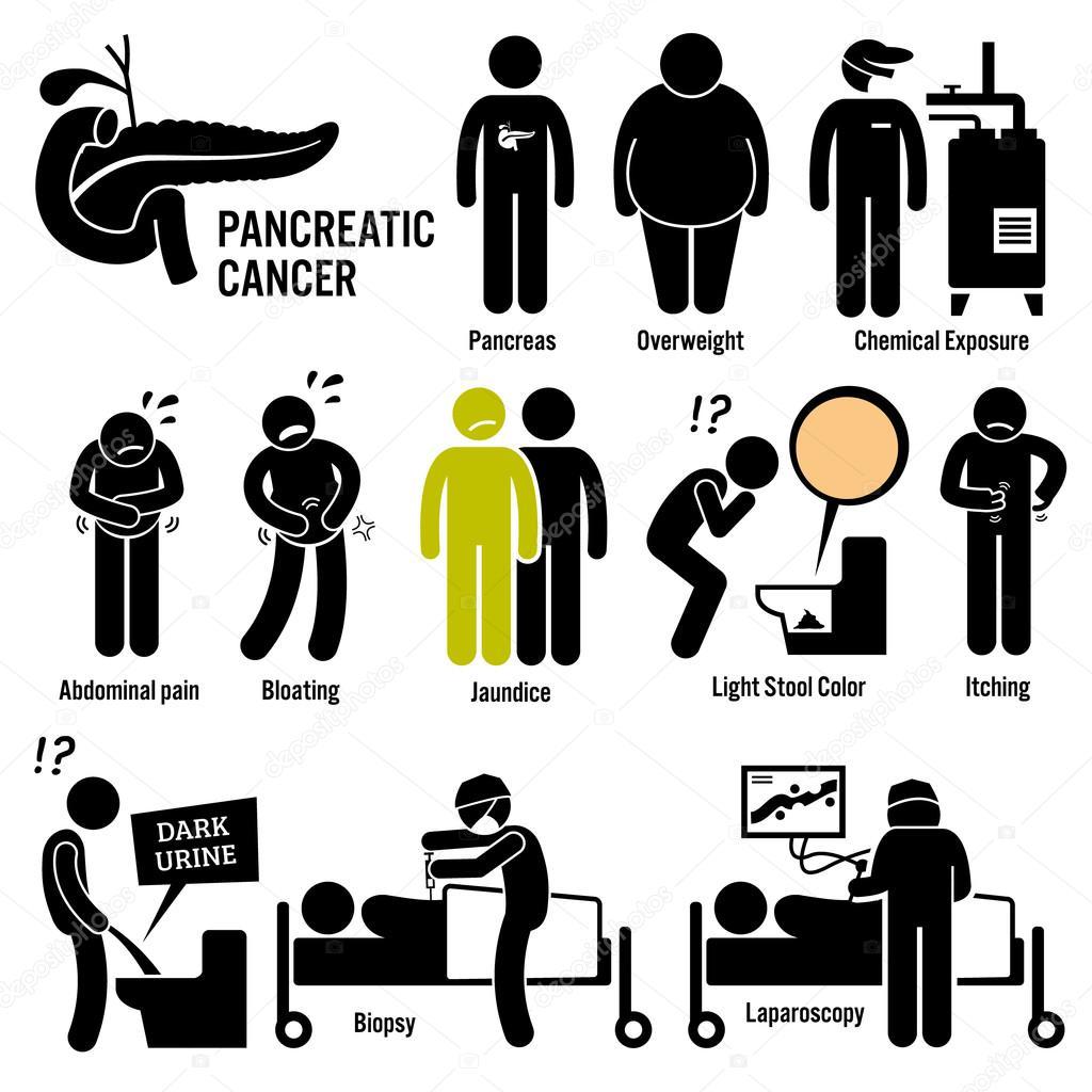cancer pancreas fatores de risco