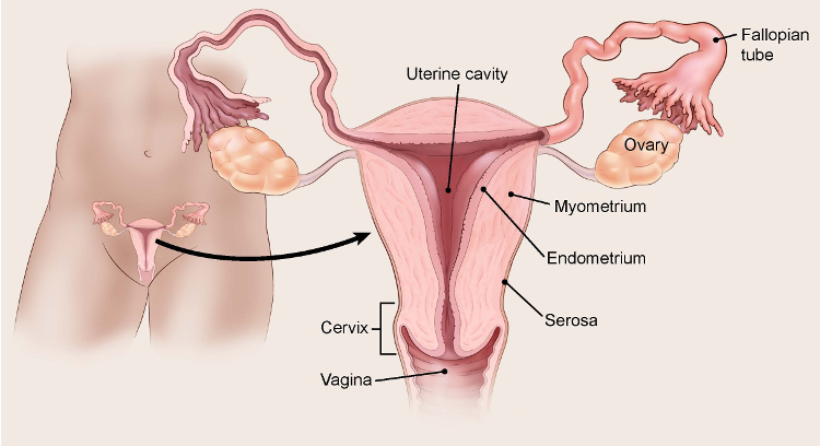 cancer endometrial gp