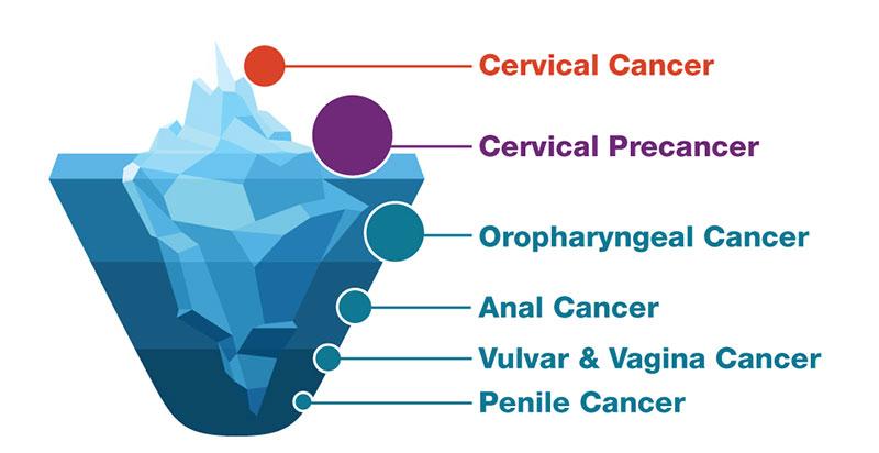 hpv e cancer de garganta el oxiuros que es