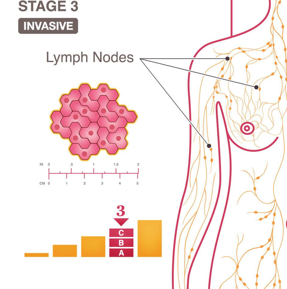 aggressive cancer lymph nodes papilloma eyelid tumors