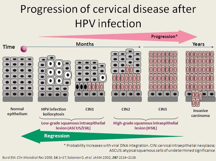 papilloma virus hpv cin 1