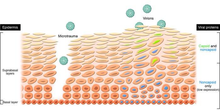 papillomavirus gorge traitement