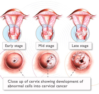 lesione utero papilloma virus