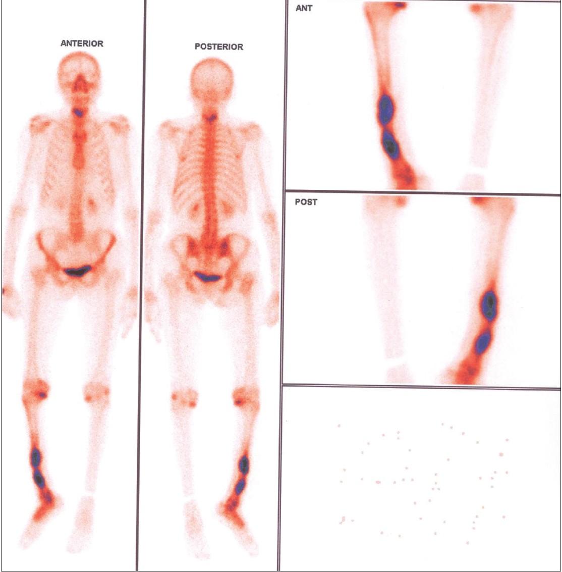 symptoms of papillomapapillomavirus humain risques new staging for hpv throat cancer