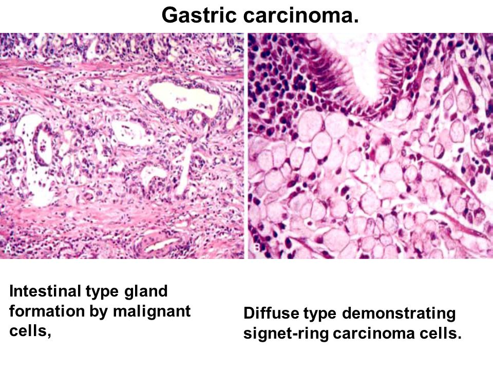 gastric cancer diffuse type neuroendocrine cancer stage 4 survival rate