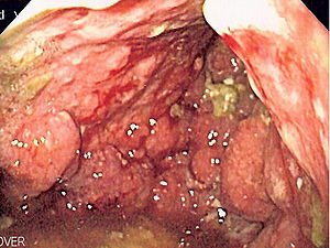 cancer gastric icd 10
