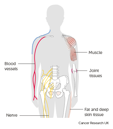 cancer sarcoma types