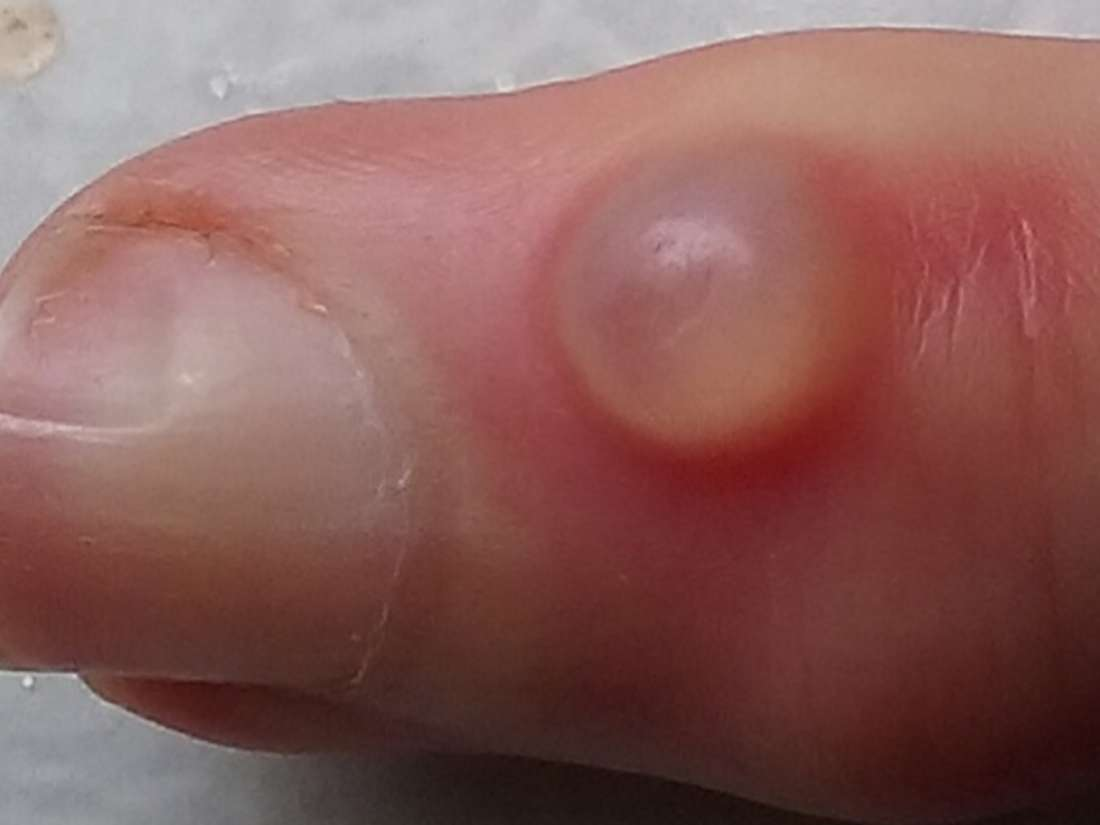 warts on hands turning black hpv gardasil age