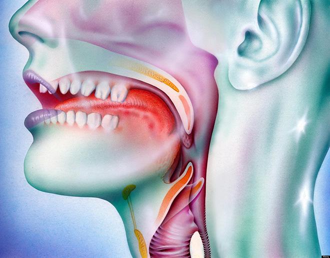 papillomavirus gola diagnosi cancer cerebral glioma