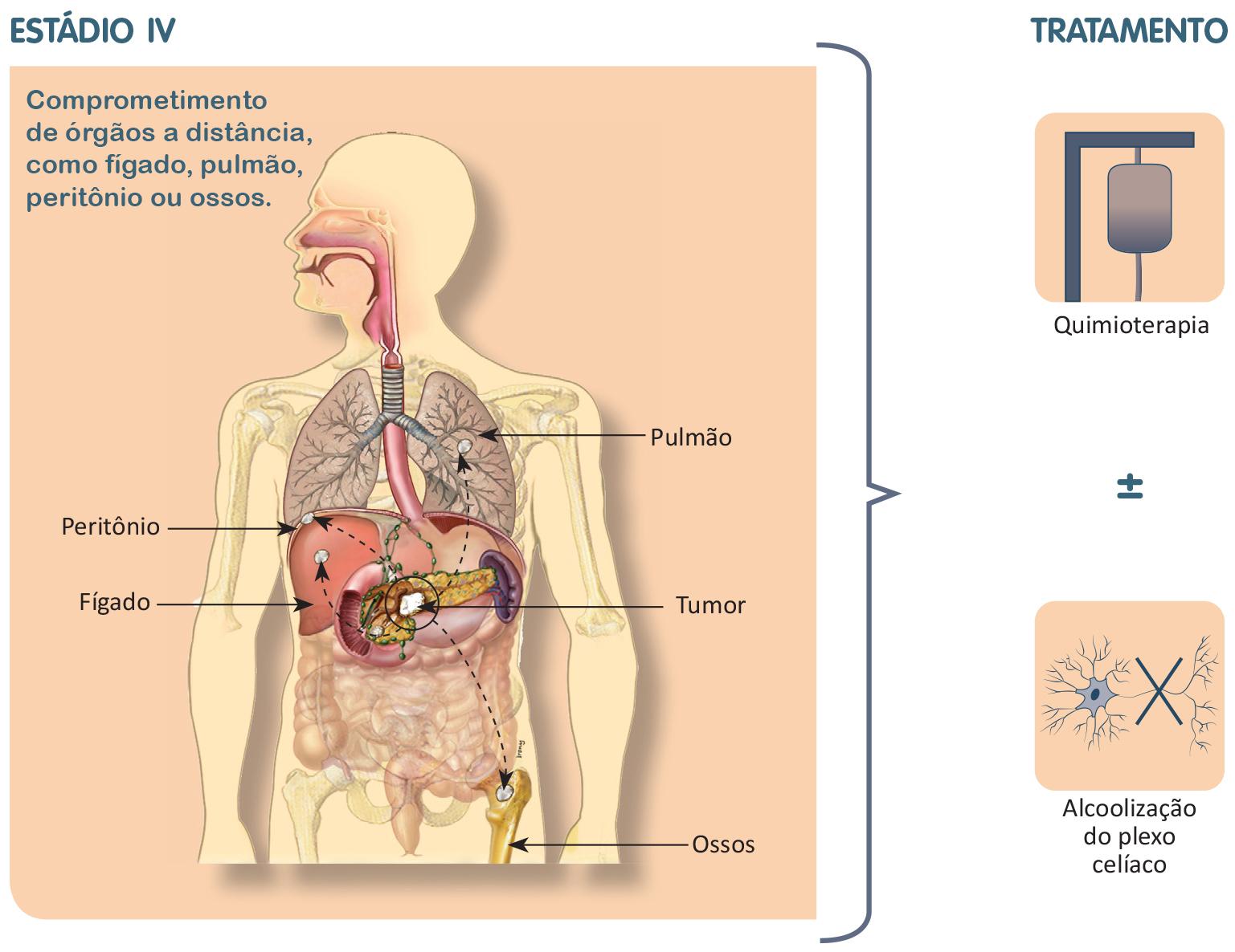Terapia generală magnetică pentru diabet