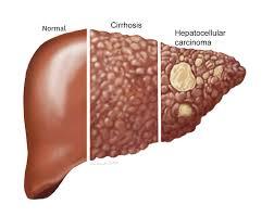 cancerul la ficat metastaza