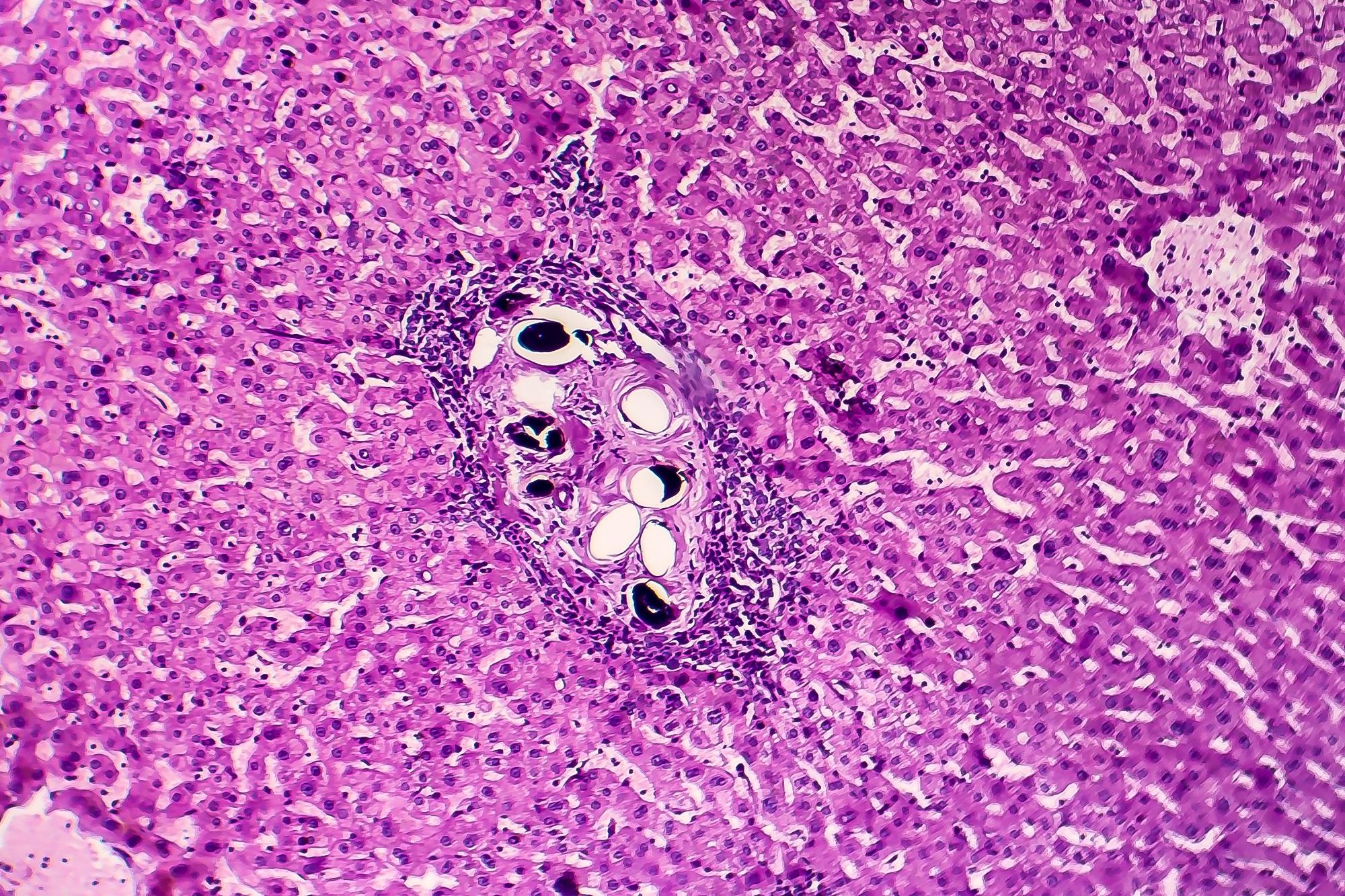 seno papilloma intraduttale colorectal cancer screening guidelines