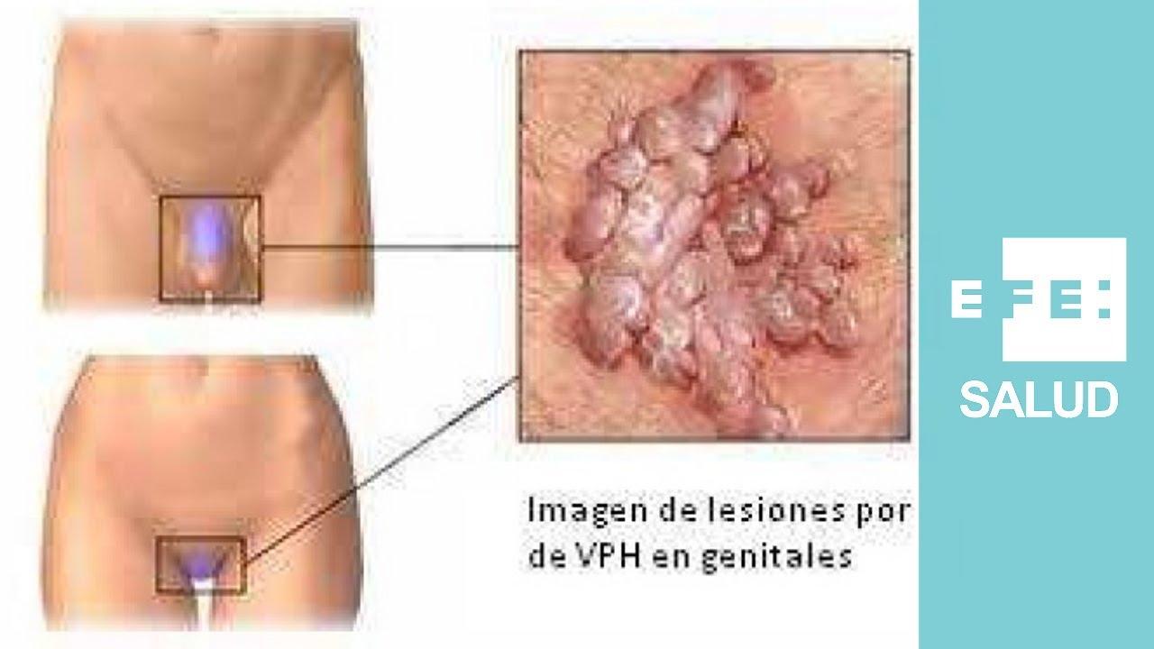virus del papiloma humano en hombres como se manifiesta tracheal papillomatosis surgery