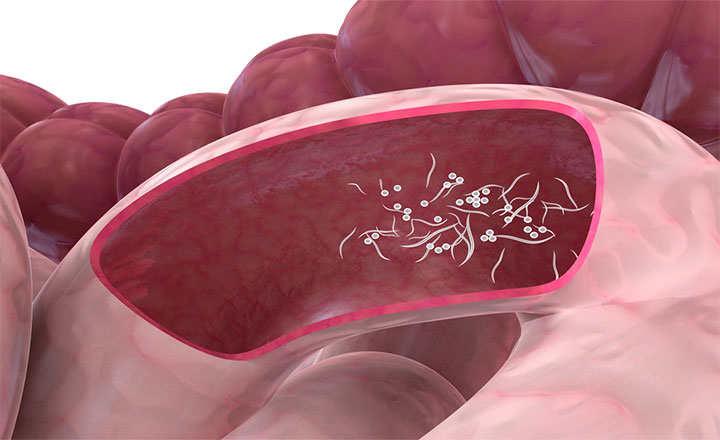 como se contagian los parasitos oxiuros