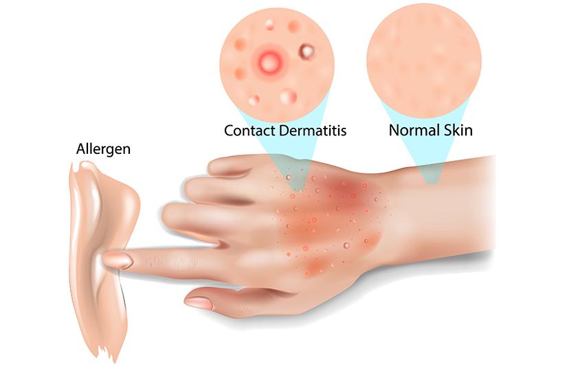 benign cancer bbc bitesize papiloma precancer lesion