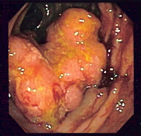 cancerul intestinal causas y tratamiento de oxiuros