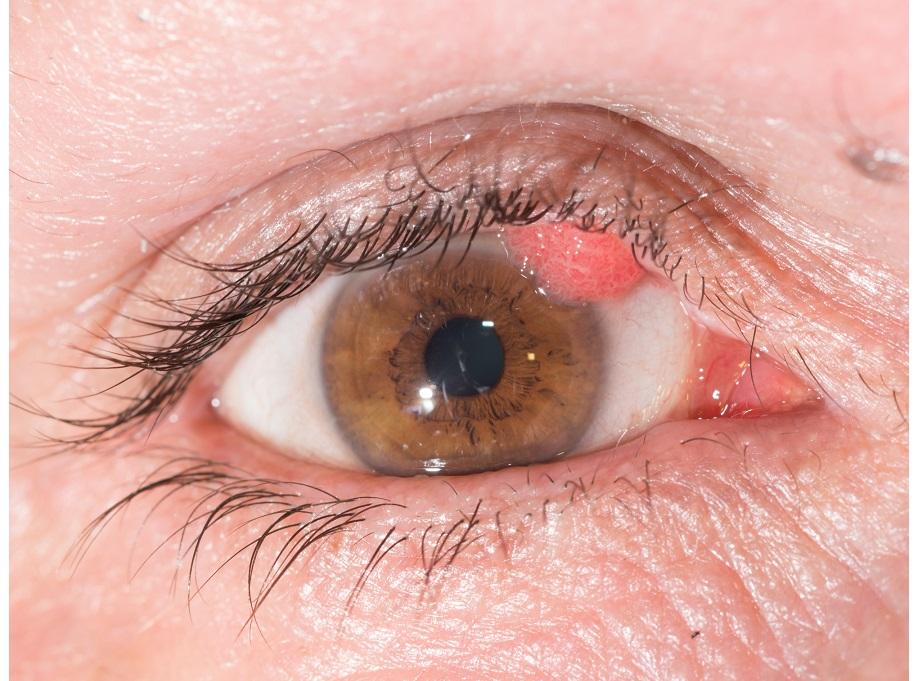 eyelid wart (papilloma)