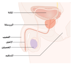 hpv y cancer de prostata