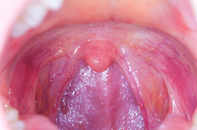 hpv 16 cancer of throat