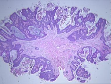 fibroepithelial papillomas papilloma uroteliale benigno