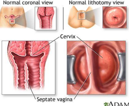 cancer de prostata stadiul 4 speranta de viata papiloma humano y lupus