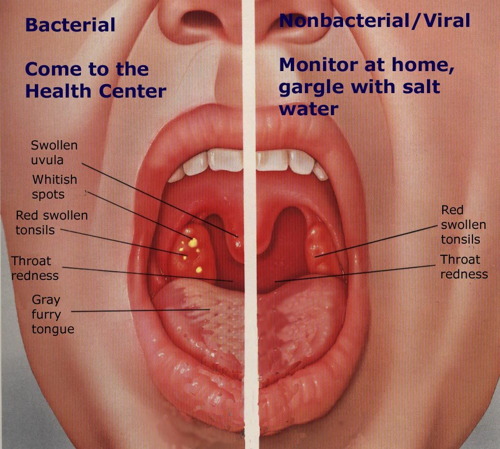 hpv throat hurts