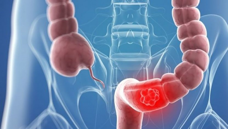cancerul intestinal cervical cancer review