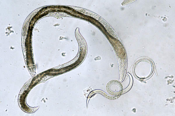 viermi intestinali tenia carcinoma da papilloma virus
