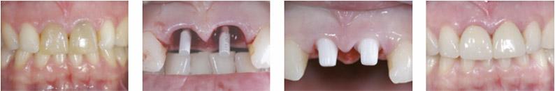 papilloma of left eyelid icd 10 hpv throat cancer michael douglas