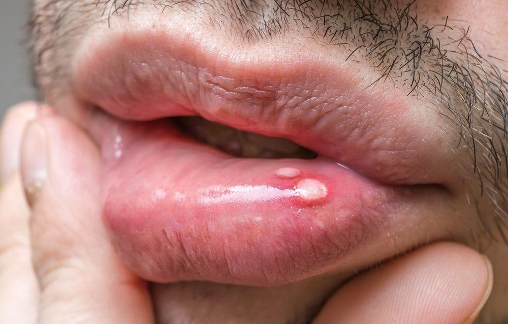 hpv lip warts