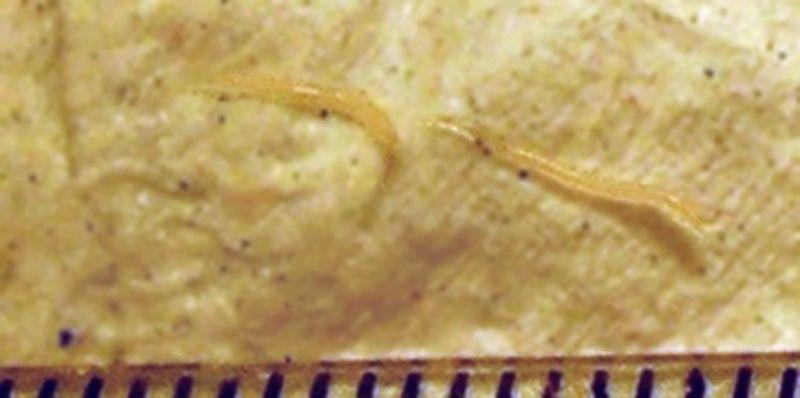 paraziti la copii cancer peritoneal dolor