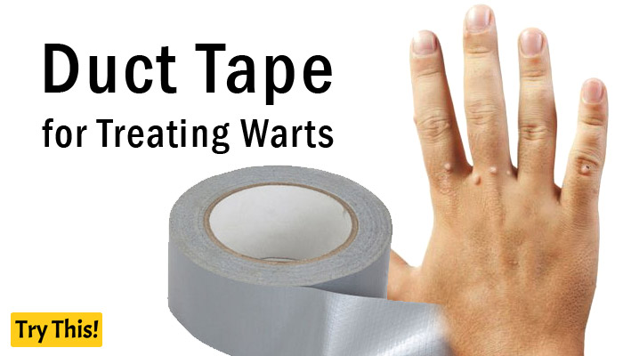 warts treatment with duct tape