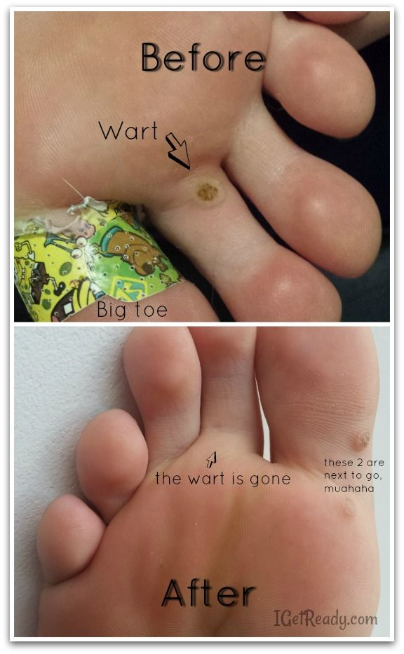 wart on foot removal procedures