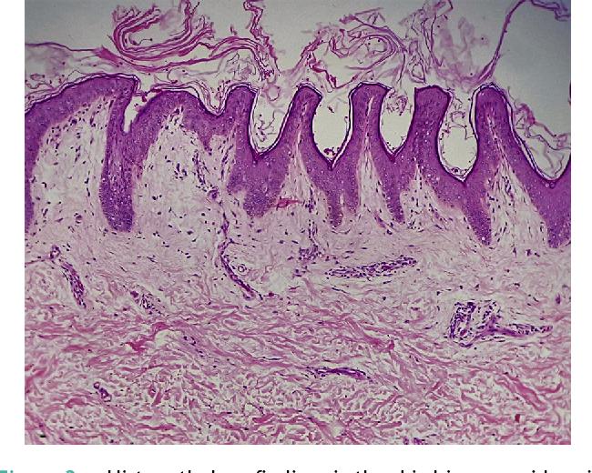 papillomatosis dermis cancer renal globocan