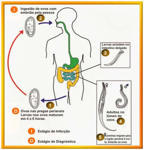 oxiuros nauseas enterobius vermicularis oxiuros tratamiento