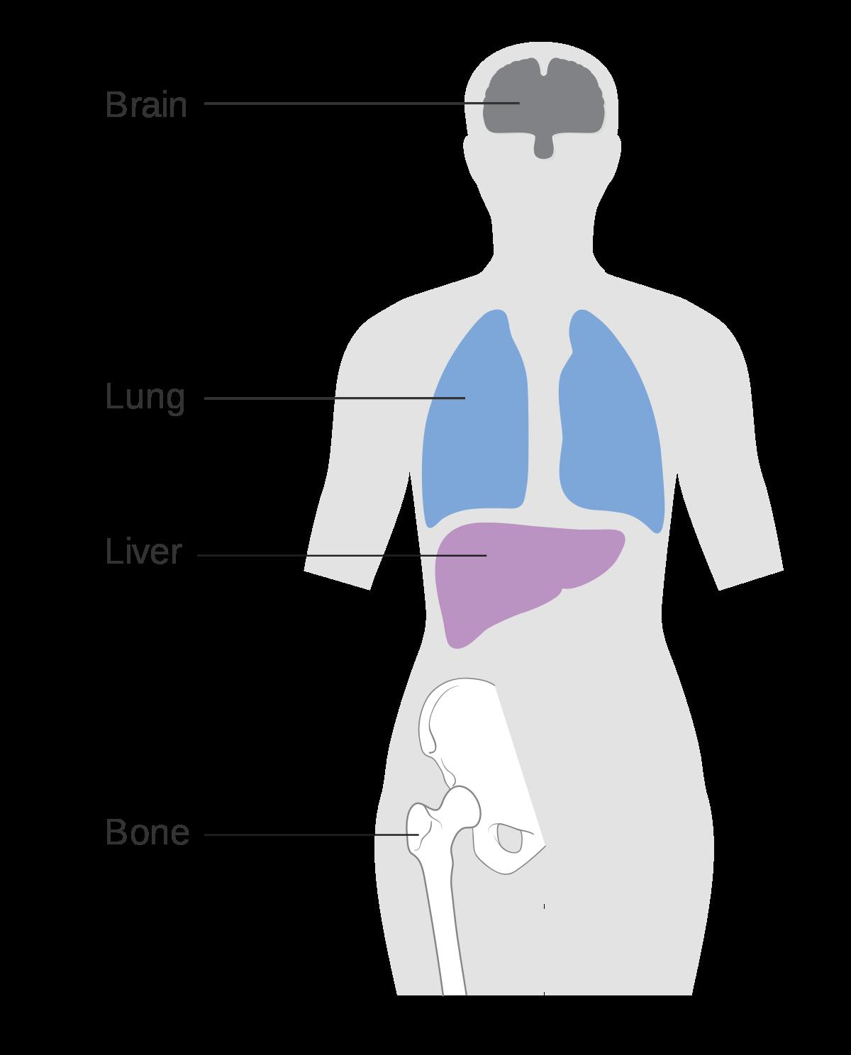 abdominal cancer metastasis virus del papiloma humano cancer de cuello uterino