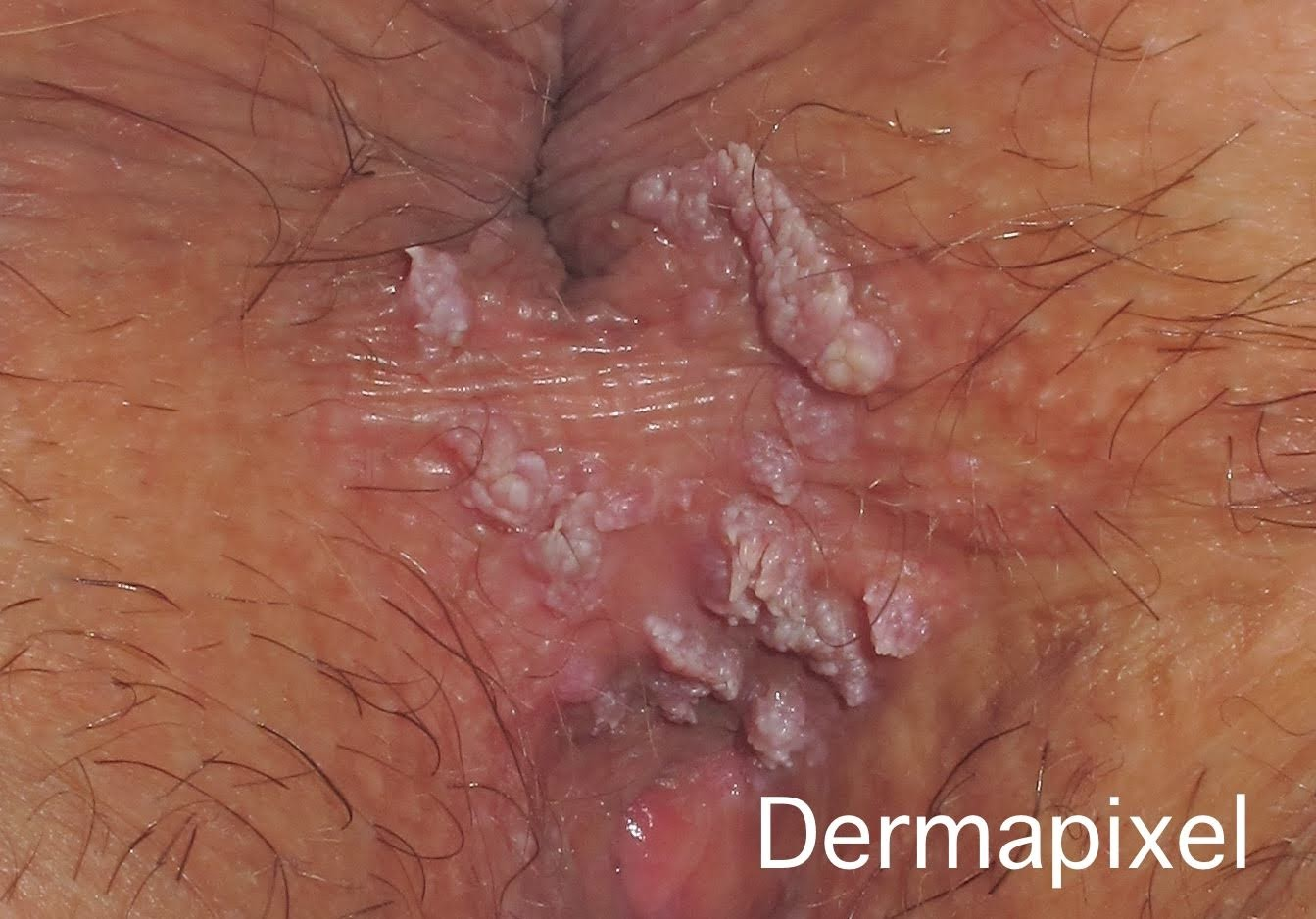 hpv virus for woman ovarian cancer research