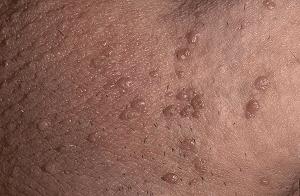 hpv carcinoma in situ hpv genital wart cancer