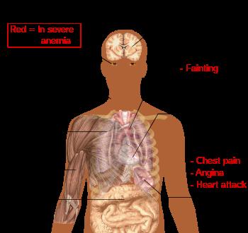 cancerul de san si alaptarea imunoterapie cancer pulmonar cu celule mici