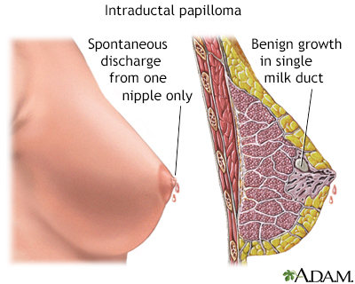 are intraductal papillomas cancerous