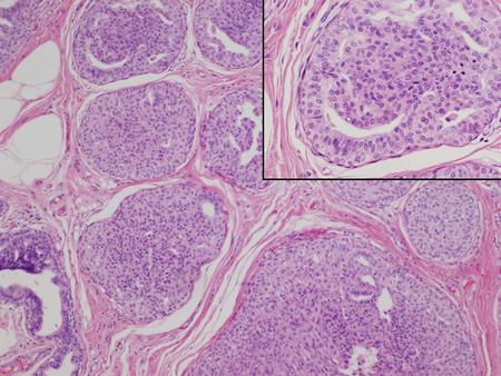cancer bucofaringeo que es hpv cancer colon