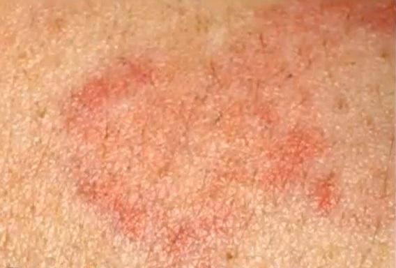 Femeie cu viermi sub piele
