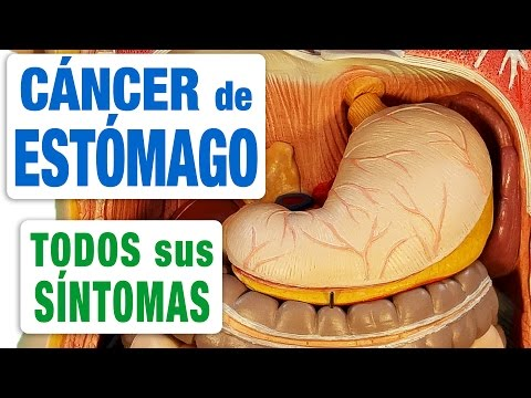 cancer peritoneal avanzado sintomas