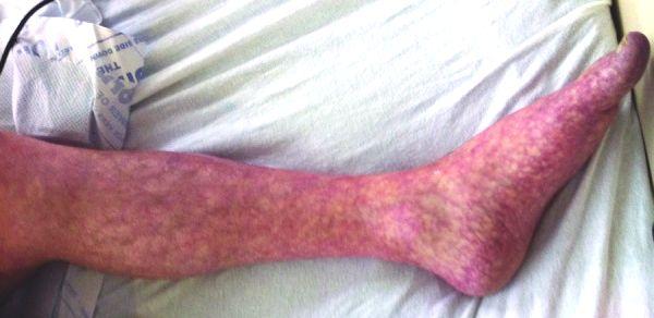 papilloma gluteal adalah nhs papilloma removal