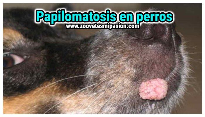tratamiento de papilomatosis