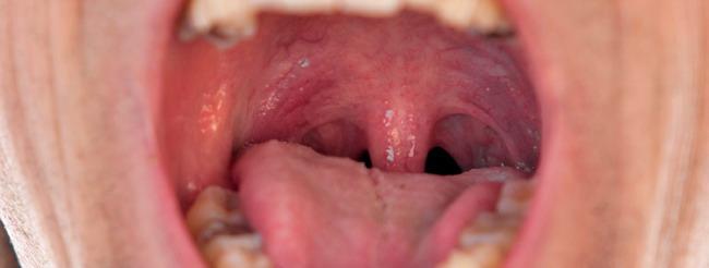 virus del papiloma y garganta