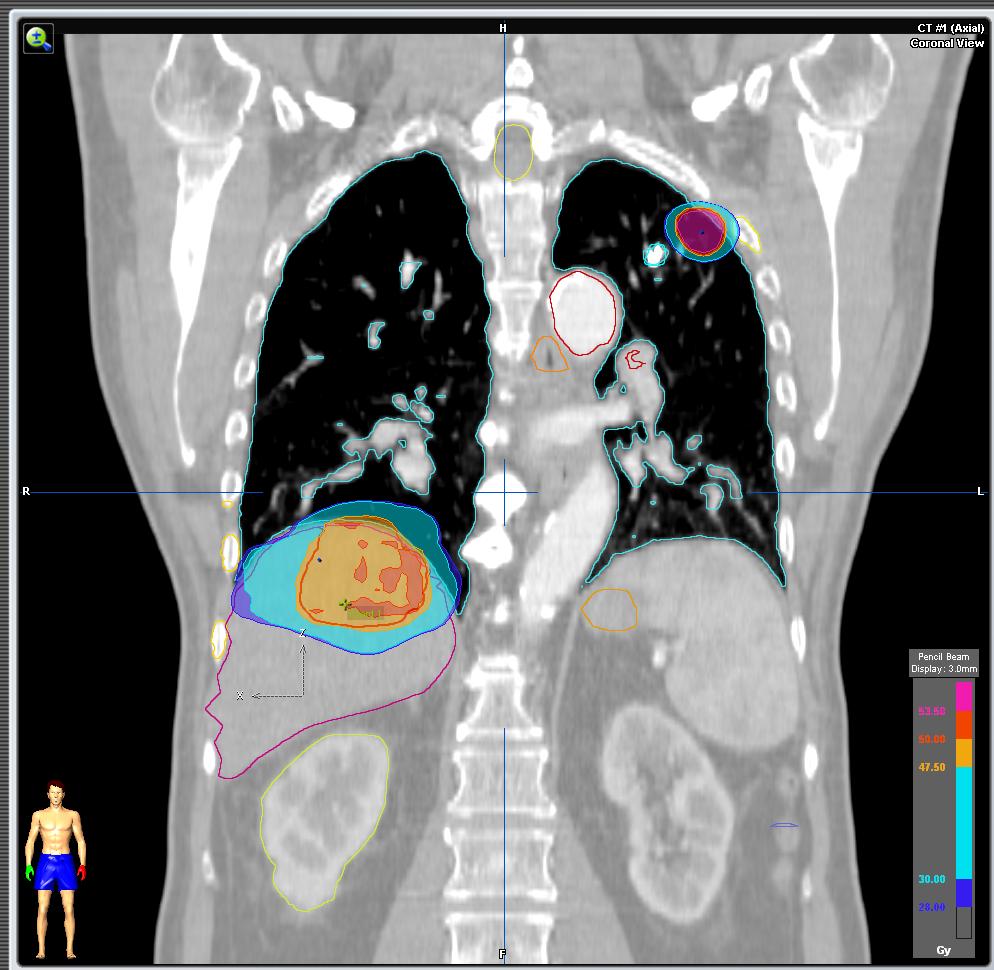 cancer de prostata metastasis pulmonar hpv virus not 16 18