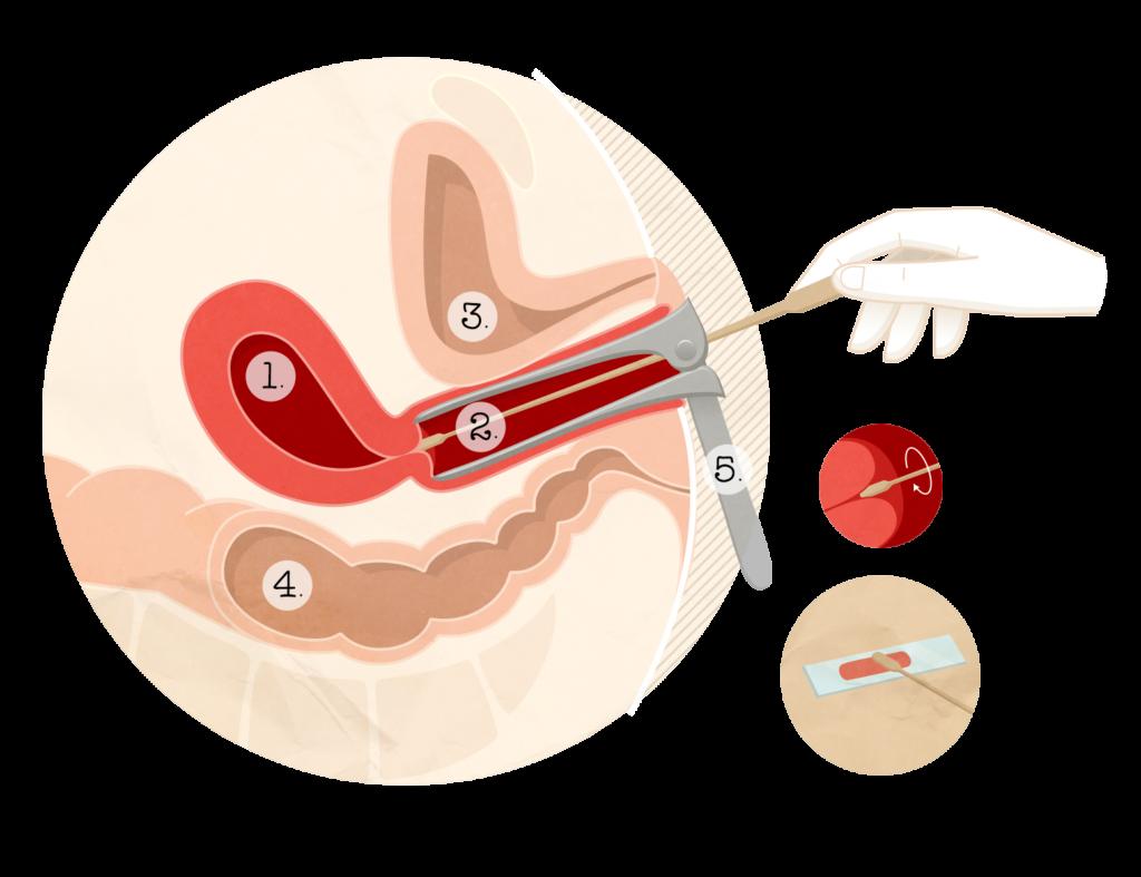 frottis papillomavirus traitement cancer of abdominal wall