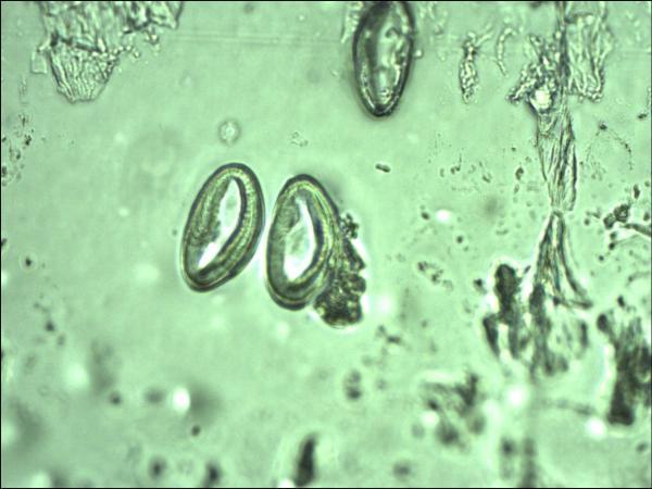 enterobius vermicularis u trudnoci another medical term for papilloma